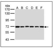 AP23631PU-N - IAP1 / BIRC3