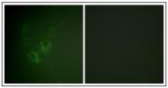AP23638PU-N - Ah receptor / AhR
