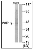 AP23639PU-N - gamma 2 smooth muscle Actin / ACTG2