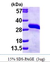 AR09748PU-L - Glyoxalase II / HAGH