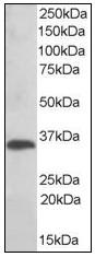 AP23650PU-N - TXNDC1 / TMX1