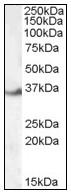 AP23573PU-N - LASP1