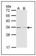 AP23580PU-N - Arginase-1