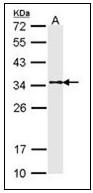 AP23588PU-N - Tropomyosin-1 (TPM1)