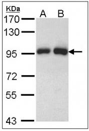 AP23589PU-N - Gelsolin
