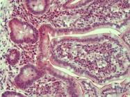AP23596PU-N - Claudin-2 / CLDN2
