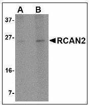 AP23597PU-N - Calcipressin-2