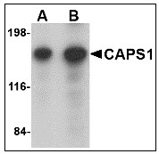 AP23465PU-N - CADPS