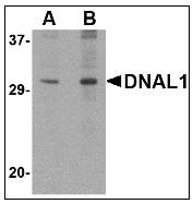 AP23469PU-N - DNAL1