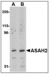 AP23470PU-N - Neutral ceramidase / ASAH2