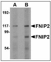 AP23472PU-N - FNIP2