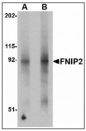 AP23474PU-N - FNIP2