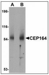 AP23475PU-N - CEP164