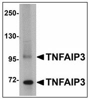 AP23477PU-N - TNFAIP3
