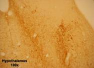 20060 - Tachykinin receptor 1 (TACR1)