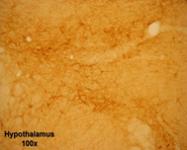 20061 - Tachykinin receptor 3 (TACR3)