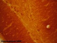 24439 - Glutamate receptor 1 / GLUR1