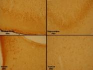 24506 - NPY receptor 1 / NPY1R