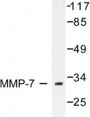 AP06234PU-N - MMP-7