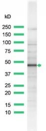 AP15606PU-S - Inhibin alpha / INHA