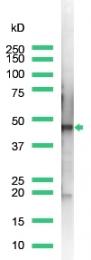AP15616PU-S - Cytokeratin 18
