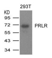 AP26068PU-S - Prolactin receptor
