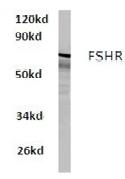 AP01215PU-N - FSH Receptor
