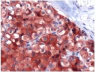 AP15712PU-M - Parathyroid hormone / PTH