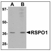 AP23479PU-N - RSPO1
