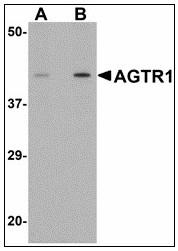 AP23488PU-N - Type-1 angiotensin II receptor (AT1)