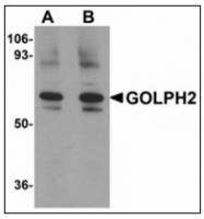 AP23490PU-N - Golgi membrane protein 1 / GOLM1