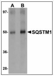 AP23491PU-N - SQSTM1