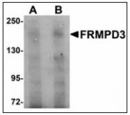 AP23492PU-N - FRMPD3