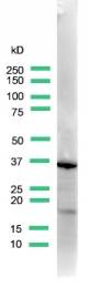 AP15852PU-S - Uroplakin-3a (UPK3A)