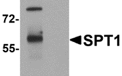 AP26145PU-N - Anosmin-1