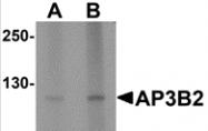 AP26159PU-N - AP3 complex subunit beta-2