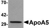 AP26164PU-N - Apolipoprotein A V / ApoA5