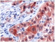 AP15387PU-S - Calretinin