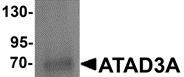 AP26155PU-N - ATAD3A