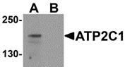 AP26124PU-N - ATP2C1