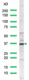 AP15511PU-S - Cyclin D1