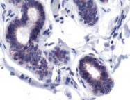 AP15494PU-S - HGF receptor