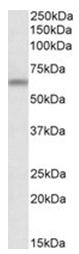 AP31061PU-N - APG16L / ATG16L1