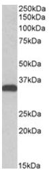AP31065PU-N - Carbonyl reductase 3