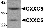 AP26078PU-N - CXXC5