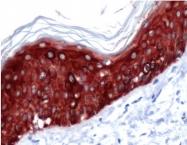 AP15615PU-S - Cytokeratin 14
