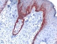 AP15620PU-M - Cytokeratin 5