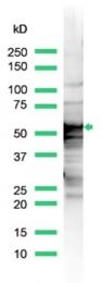 AP15624PU-S - Cytokeratin 8