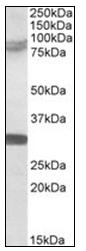 AP31074PU-N - TRIM2 / RNF86