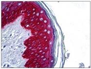 AP31048PU-N - Cytokeratin 14